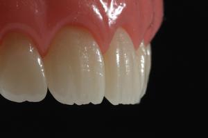 ضرورت تعویض کامپوزیت دندان 5421035468412