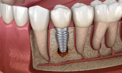 کدام مرحله از ایمپلنت درد دارد 32468543151320.