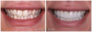 لمینت دندان نامنظم 181256442131351