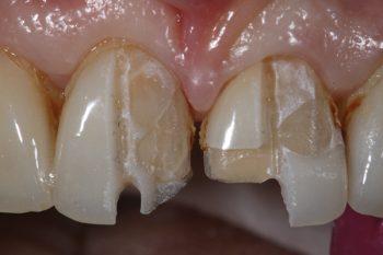 تعویض لمینت دندان 8748765451354312