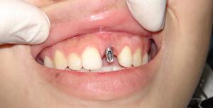 کدام مرحله از ایمپلنت درد دارد 154864153412015