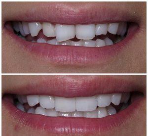 کامپوزیت دندان خرگوشی چگونه انجام می شود 26543321233054