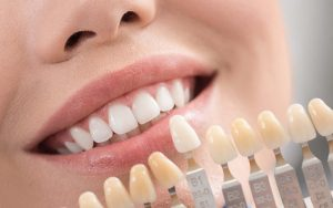 تعویض لمینت دندان 8967846563456451
