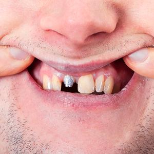 چرا عوارض ایمپلنت دندان طولانی می شود 1264652315414154