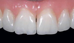 ضرورت تعویض کامپوزیت دندان 25684763513200