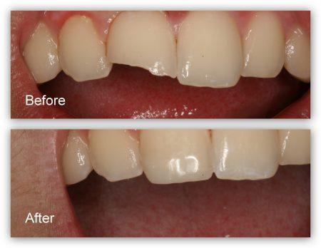 کامپوزیت دندان شکسته 3416548561233