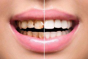 لمینت دندان تغییر رنگ داده 2435874215641000021213