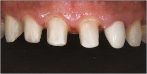جلسات کامپوزیت دندان 54746416545641531354