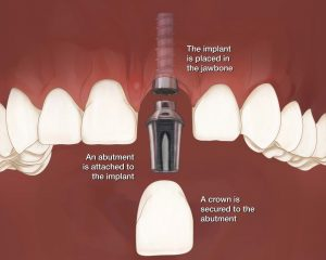 روش های اتصال روکش ایمپلنت دندان به پایه 8746542356420200