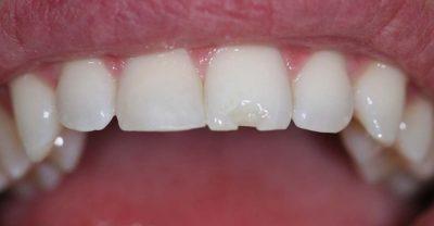 لب پر شدن ونیر دندان 4654545845