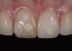 ماندگاری رنگ در کامپوزیت دندان 8476541354500139