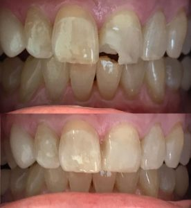 کامپوزیت ونیر دندان لب پر شده 548652.1354352