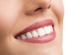 کاندید مناسب کامپوزیت دندان 5874513351332