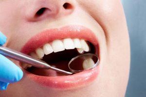 حساسیت دندان بعد از کامپوزیت 5341265126413233