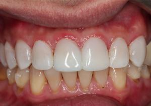 مزایای کامپوزیت دندان چیست 456485646345