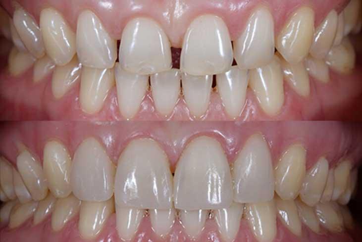 مزایای کامپوزیت دندان چیست 74654564654564