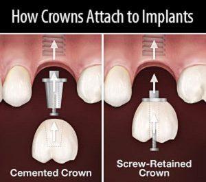 روش های اتصال روکش ایمپلنت دندان به پایه 541565646823152020