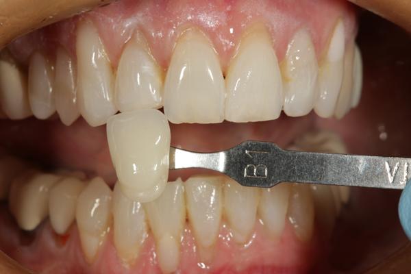 ماندگاری رنگ در کامپوزیت دندان 875420013965512