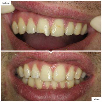 کامپوزیت ونیر دندان لب پر شده 687453151431231