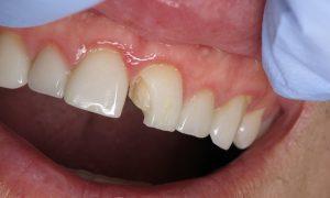 لب پر شدن ونیر دندان 656+6565000634