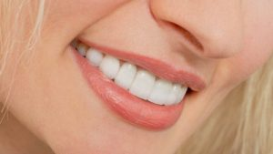 انواع مختلف لمینت دندان 660496498409