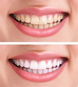 لمینت دندان زرد 654654312