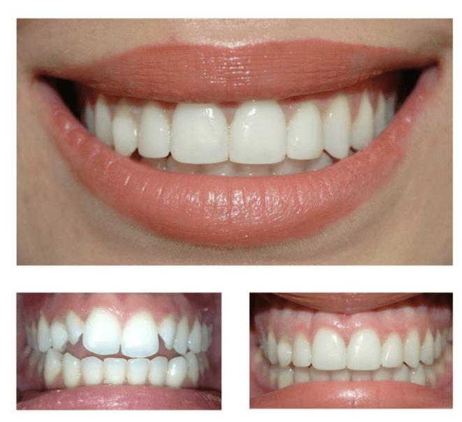 کامپوزیت برای دندان کج 798546432131.0