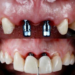 هر آنچه درباره ایمپلنت دندان باید بدانید 785846512000