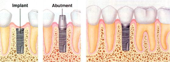 مراحل ایمپلنت دندان 564546584654351
