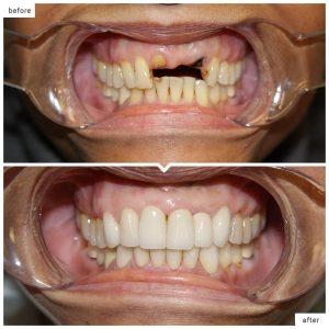 انواع روکش ایمپلنت دندان 78456451458412