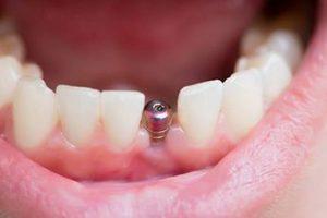 قیمت ایمپلنت دندان 84768435215423