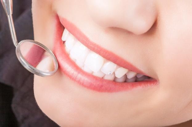 مراقبت بعد از کامپوزیت دندان 879786454523121000