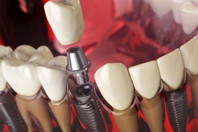 معروف ترین برند ایمپلنت دندان کدام اند 75847966310203231