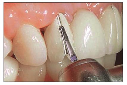برداشتن کامپوزیت دندان 574789455412311