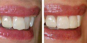 کامپوزیت برای دندان کج 456486646548