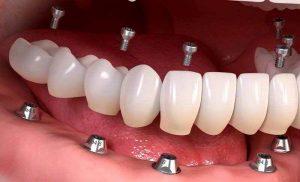 هر آنچه درباره ایمپلنت دندان یک روزه باید بدانید 4789749654332100