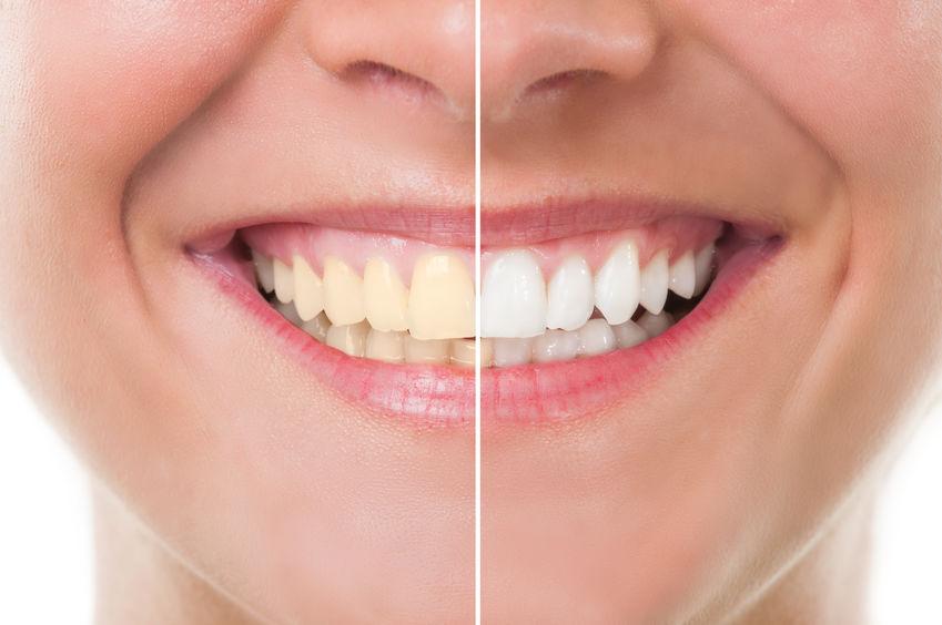 لمینت دندان زرد 654652131543