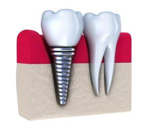 انواع روکش ایمپلنت دندان 54275645