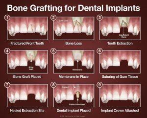 مراحل ایمپلنت دندان 41546545645341