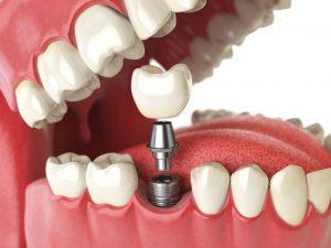 قیمت ایمپلنت دندان 46453456345678