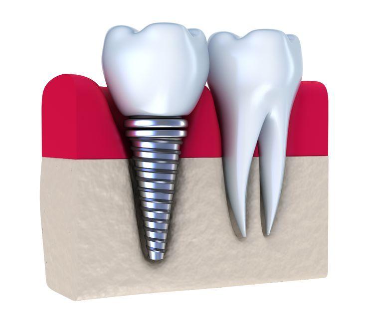 انواع روکش ایمپلنت دندان 5421875645