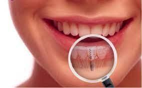 کاندید مناسب برای ایمپلنت دندان5465658856658