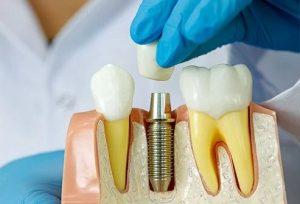 مراحل ایمپلنت دندان چقدر زمان نیاز دارد؟ 2145417845521000