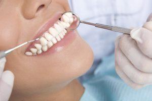 کاندید مناسب برای ایمپلنت دندان 56553525546