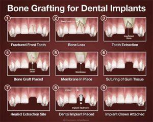 مراحل ایمپلنت دندان چقدر زمان نیاز دارد؟ 15489935200
