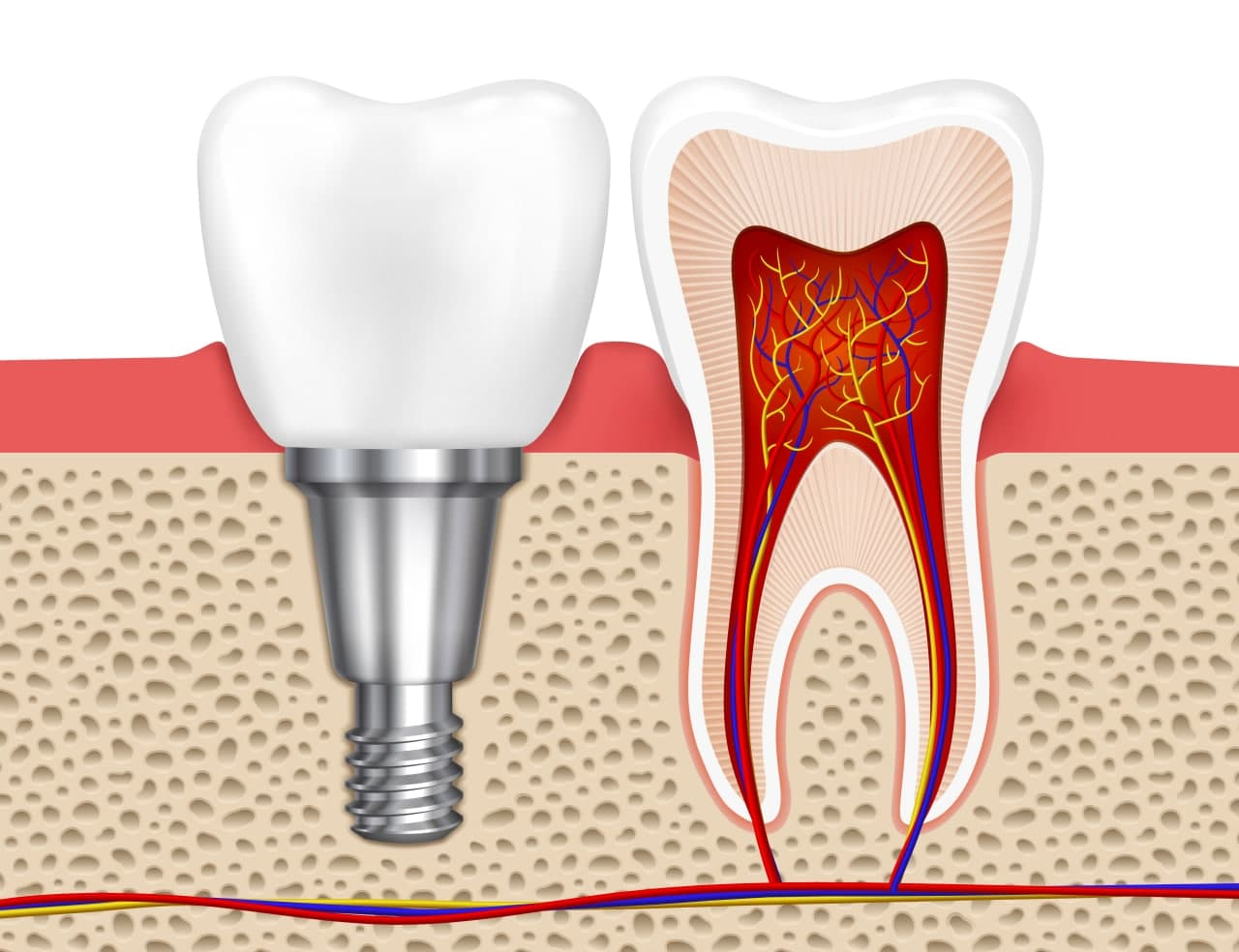مزایای کاشت ایمپلنت دندان