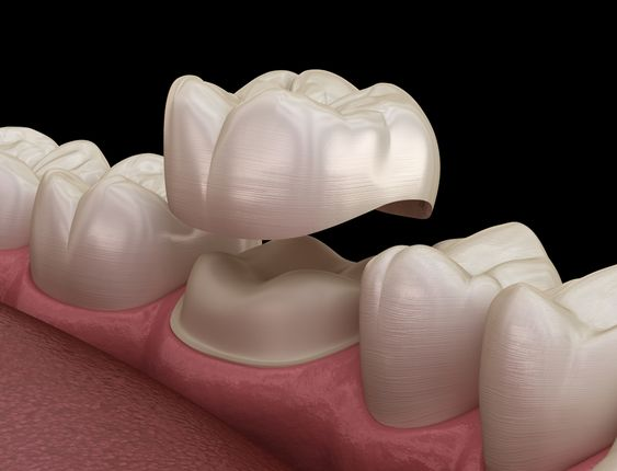 عکس روکش دندان