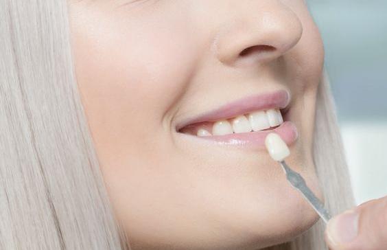 لمینت دندان یا ونیر پرسلن