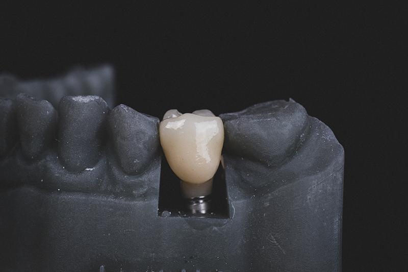 عوارض ایمپلنت دندان